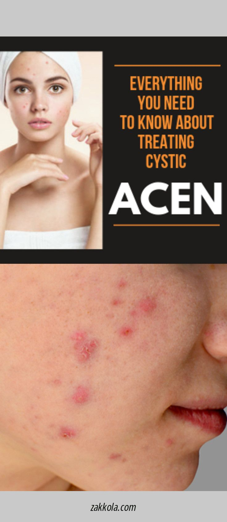Find more information on acne. Check the webpage for more information