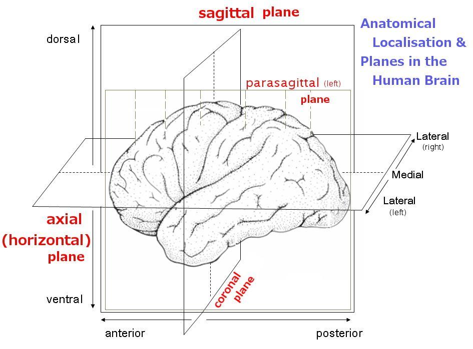 anatomical planes of brain | Neuroanatomy-Lecture 1 | Pinterest ...