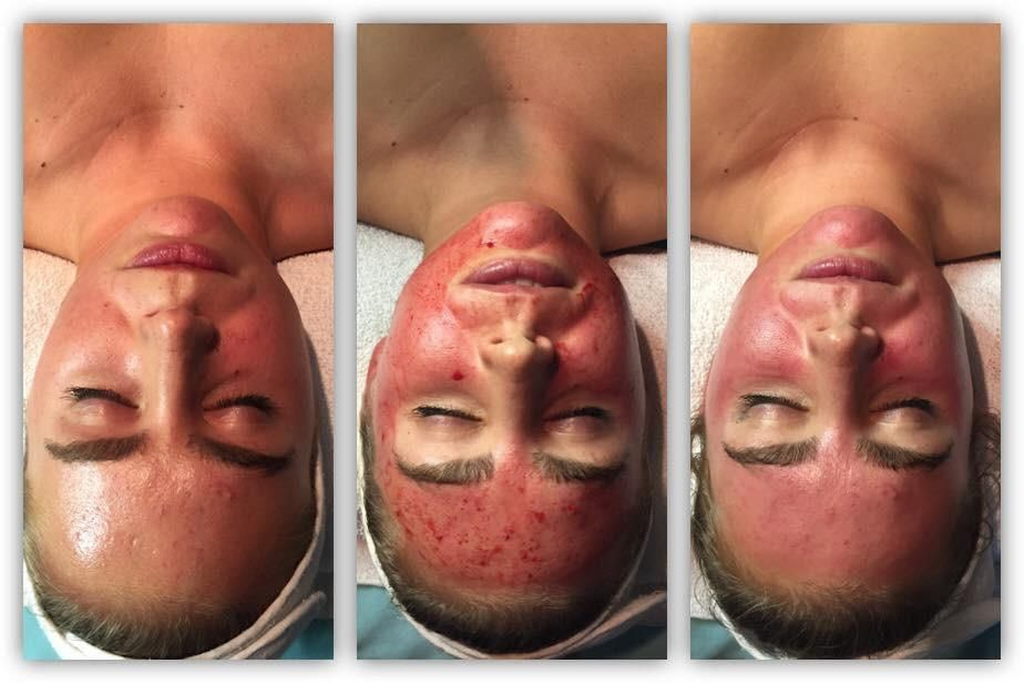Collagen Induction Therapy (CIT) / Micro-needling & Introduction to