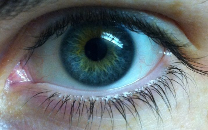 what causes central heterochromia - Google Search   EDS ...