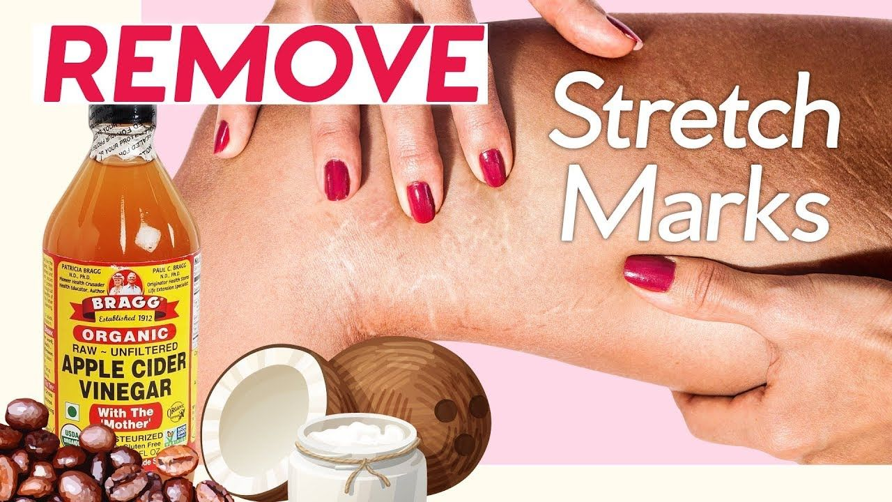 11 ways to get rid of stretch marks naturally pressure