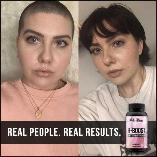 H-Boost Hair Growth Pills