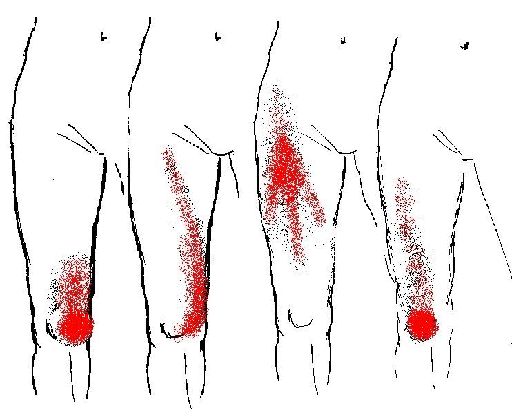 Foot sprain fibromyalgia