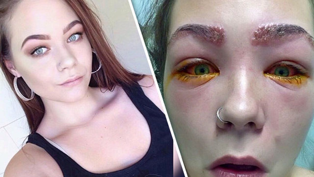 16 Yr Old Teenager Almost Blinded After Hair Dye Fail Allergic Reaction Hair Fails Dyed Hair Hair