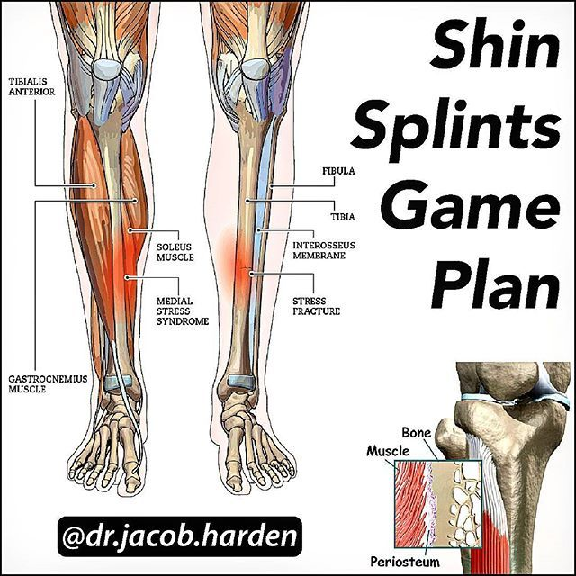 Your Guide To Fixing Shin Splints Swipe Left Shin Splints Aka Medial Tibial Stress Syndrome Or Mtss Are Caused By A Chronic Overload Of The Tibia Bone Le
