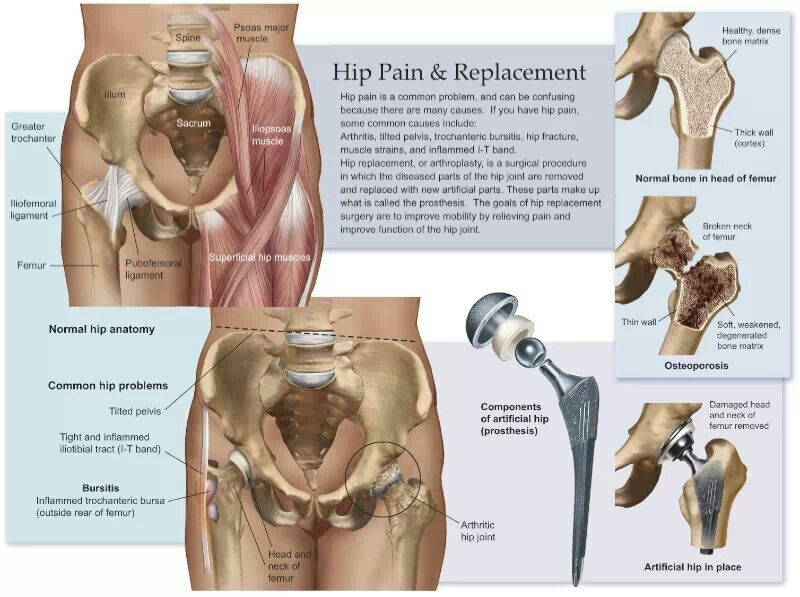 Hip Replacement Anatomy Visuals Pinterest Hip Replacement
