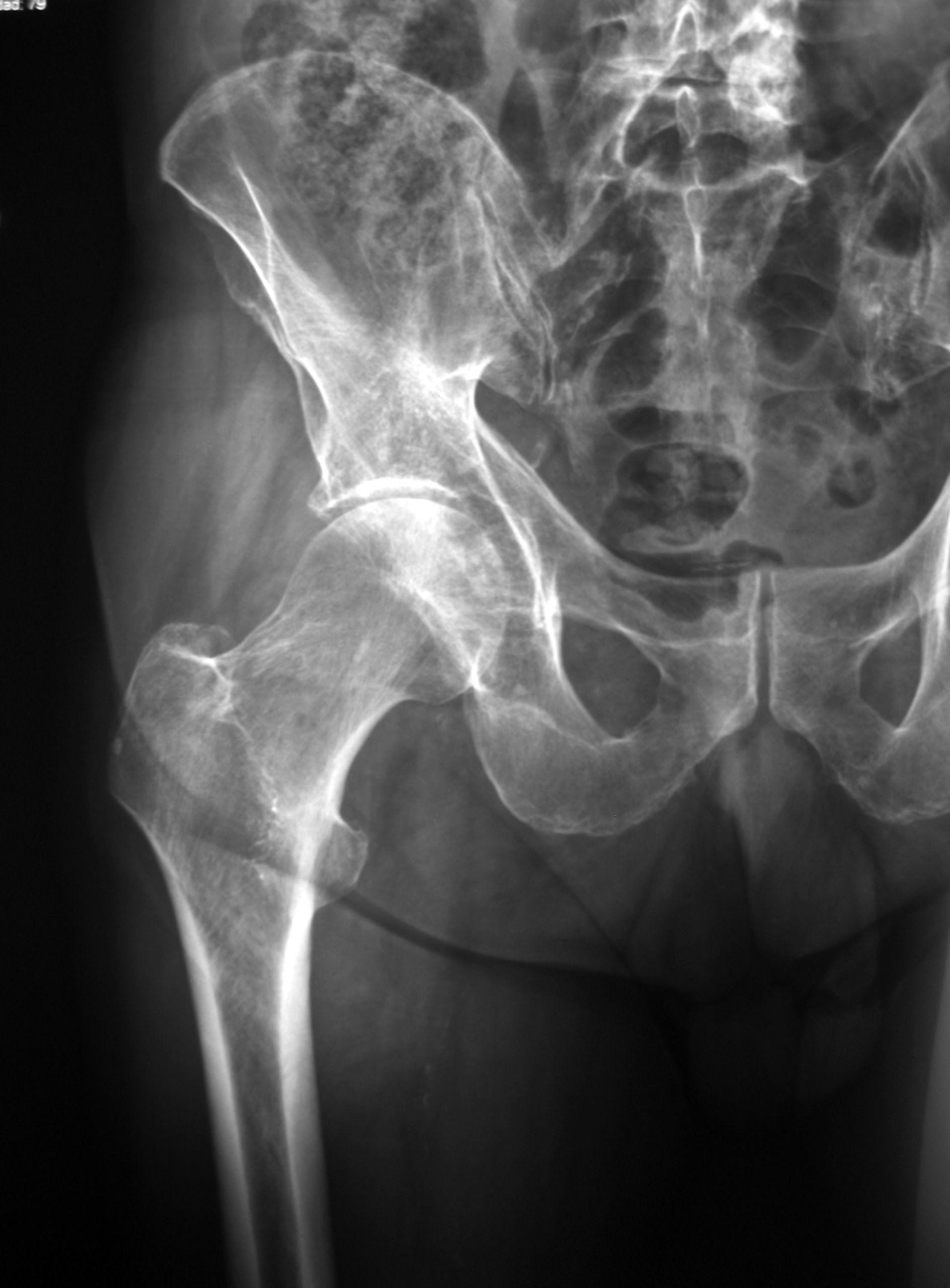 Radiografía de la cadera, frente: | ANATOMÍA | Pinterest ...