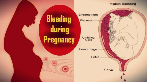 What causes decidual bleeding during pregnancy?