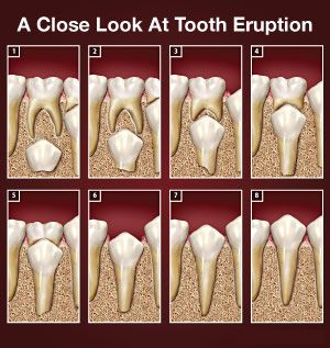 Ever wondered how permanent #tooth erupt to replace baby ...