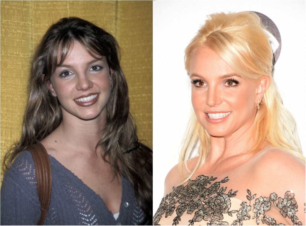 Celebrities with Plastic Surgery - Stars Who Have Admitted ...