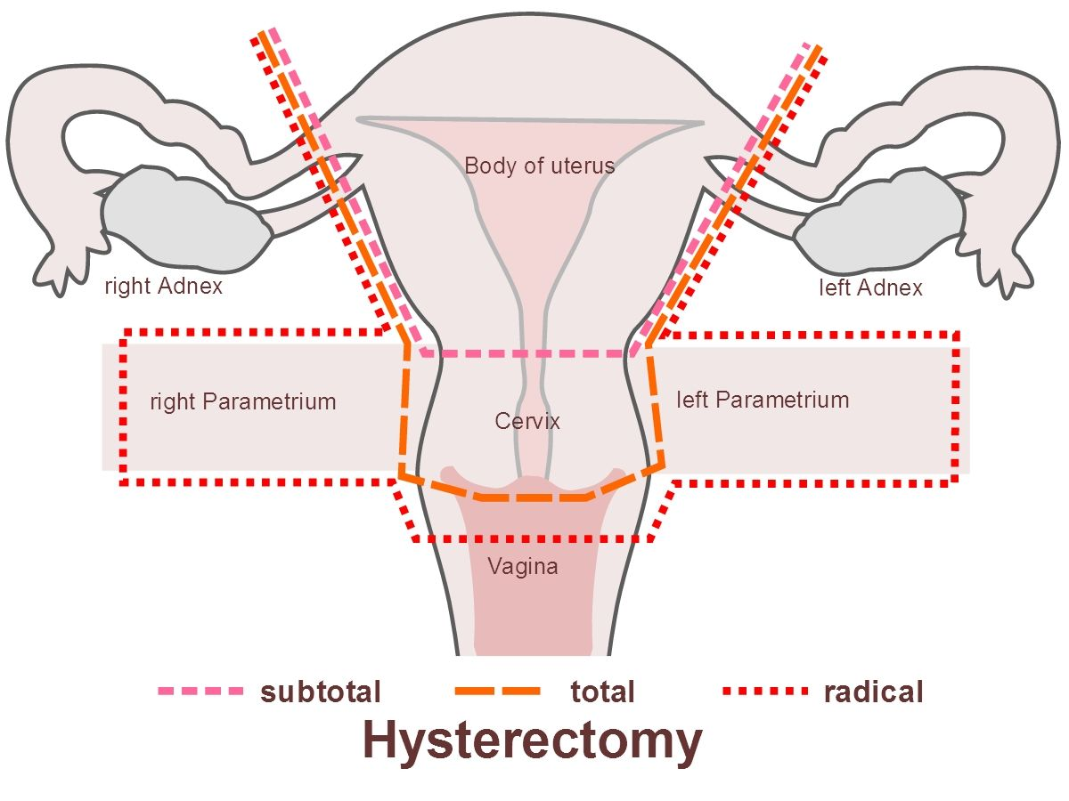 Top Side Effects Of Hysterectomy Womens Health Pinterest