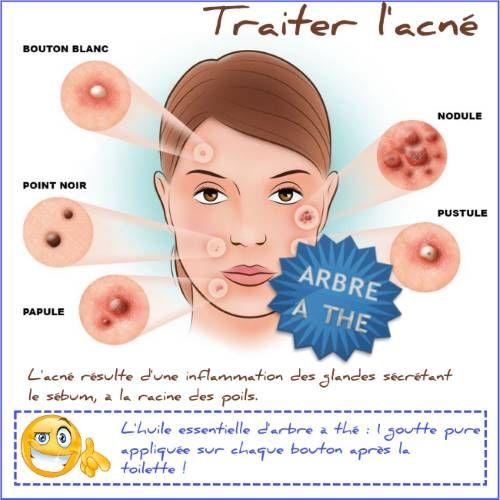 Voici ma recette contre l acné avec l huile essentielle d arbre à teat  tree. Astuce simple et pratique pour traiter l acné. 124e684712c