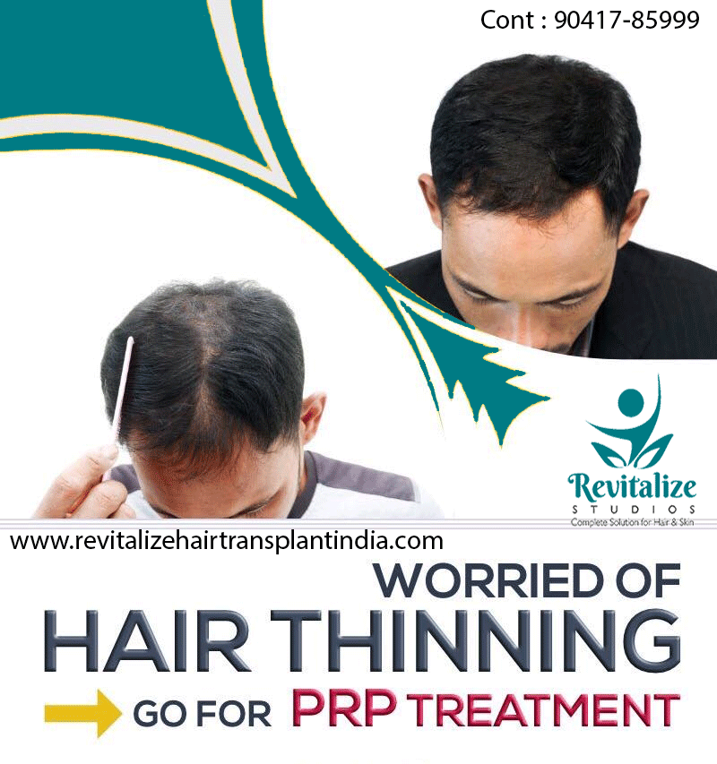 PRP Therapy Hair loss solutions, Problem hair loss, Hair