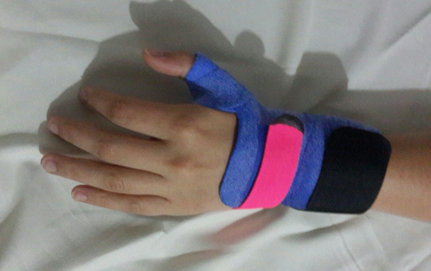 Orfit Cast Como Otra Opción En Materiales Para Férulas De Mano Girdle Hands Gloves