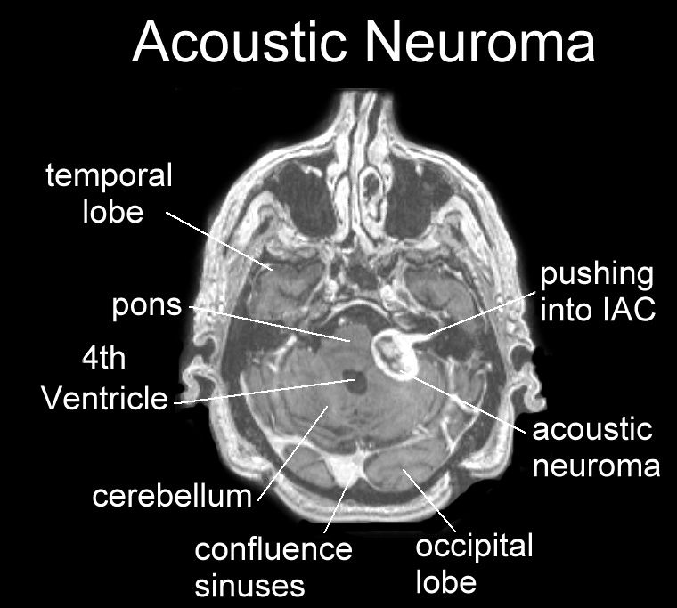 Image Result For Acoustic Neuroma Mri My Brain Pinterest