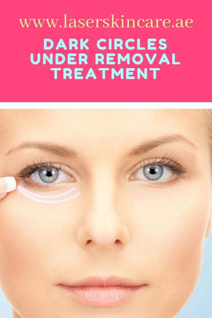 Results of Dark circles removal in Dubai are quick and long-lasting. Your dark circles will dramatically reduce after the very first treatment. After 4 to 6 Laser Treatments, dark circles will be a thing of the past and you can forget about buying the concealer. #DarkCirclesRemedies #darkcircle
