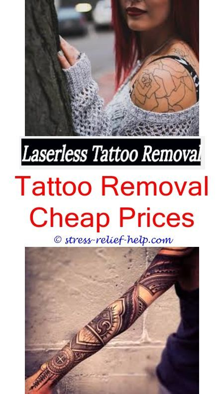 Tattoo shirt do it yourself laser tattoo removal how to remove tattoo shirt do it yourself laser tattoo removal how to remove tattoos at home for free goo can a tattoo be remov how to diy tattoo removal solutioingenieria Choice Image