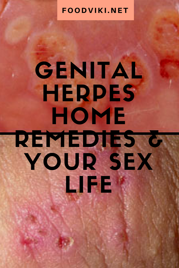 Genital herpes is one of the most common sexually transmitted diseases in  the U.S. It is