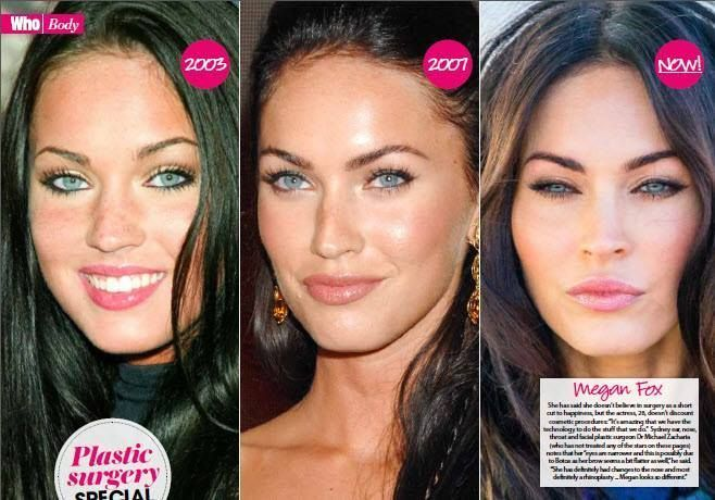 features in Who Magazine's, What They've Had Done; this week focusing on Megan Fox. Dr Zacharia notes that her