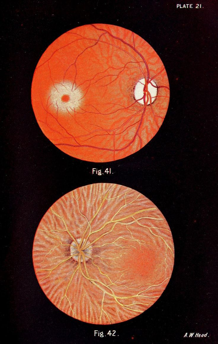amalgammaray - nemfrog: Plate 21. A pocket atlas of the fundus ...