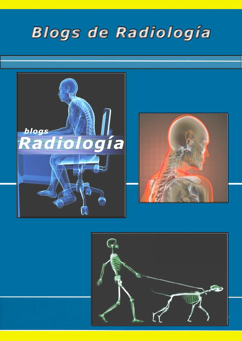 portada tablero | Blogs de Radiología | Pinterest | Radiología y Tablero