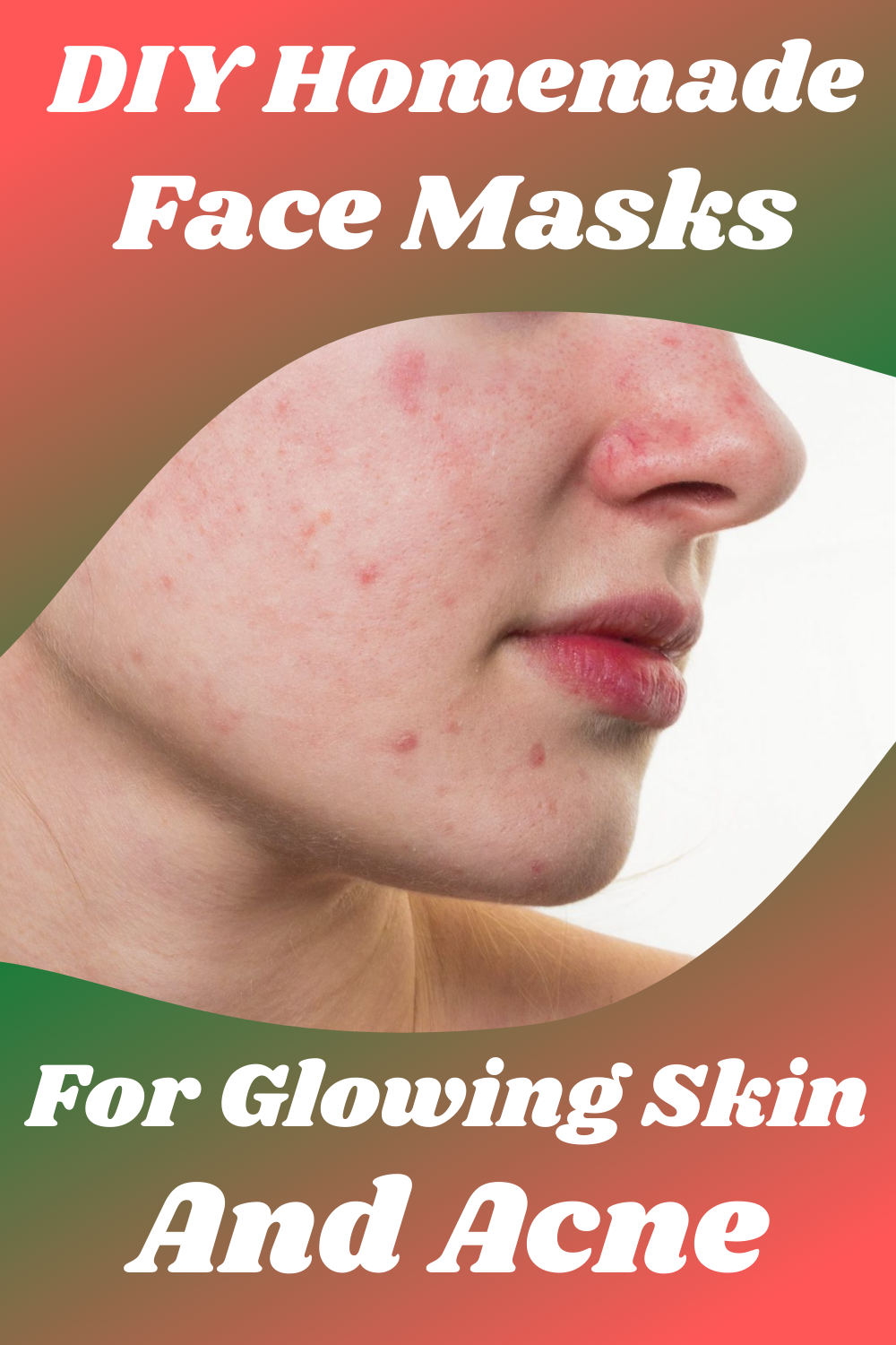 Photo of DIY Homemade Face Masks For Glowing Skin and Acne
