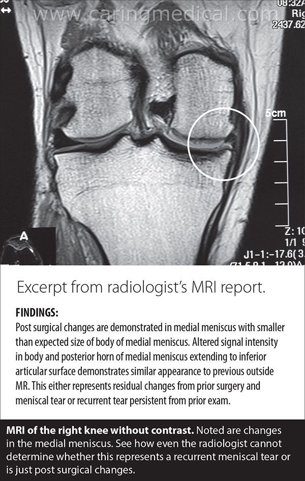 MRI Knee Meniscus | Meniscus tears non-surgical treatment options ...