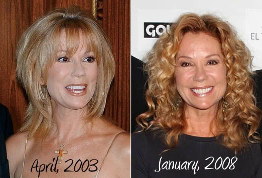 Kathie Lee Gifford Plastic Surgery Before And After Photos - plastic surgery consultant sample resume