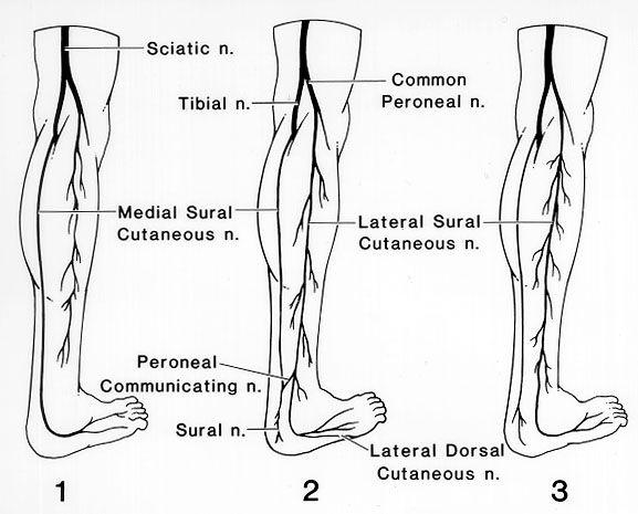 nerves of leg | Sural nerve | Pinterest | Nervous System and Medical