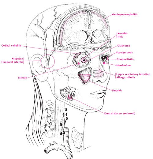 Image Detail For Temporal Artery Biopsy Arteritis Health
