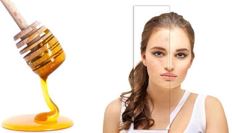 فوائد العسل للوجه وكيفية استخدامه لبشرة صافيه خالية من العيوب Vintage Microphone Microphone Vintage
