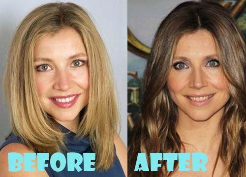 Sarah Chalke Plastic Surgery Before And After Nose Job Sarah