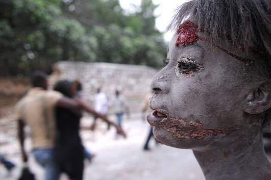 Biggest Natural Disasters: An injured person following an earthquake in Port-au-Prince, Haiti in 2010.