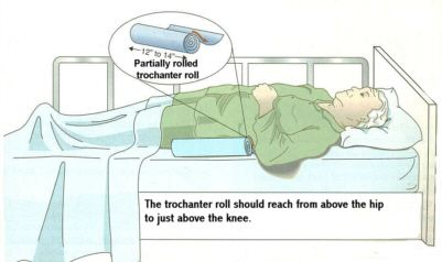 A trochanter roll