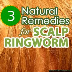 Here you have the most amazing natural remedies for scalp ringworm, also known in medical terms as tinea capitis. #scalpringworm #ringworm #homeremediesforringworm
