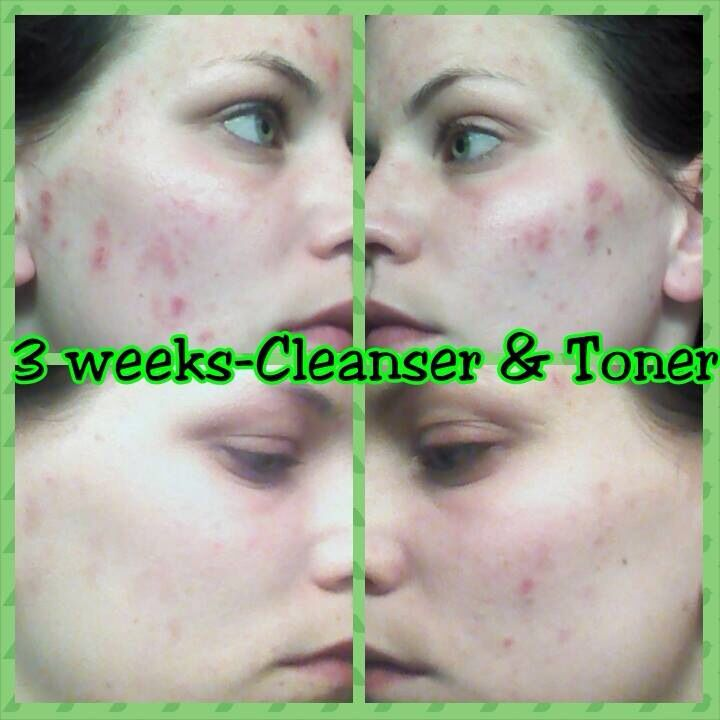 A Fellow Distributors Before And After Of Using Our Amazing Cleanser And Toner For 3 Weeks Cleanser And Toner Cleanser Natural Skin Care Routine