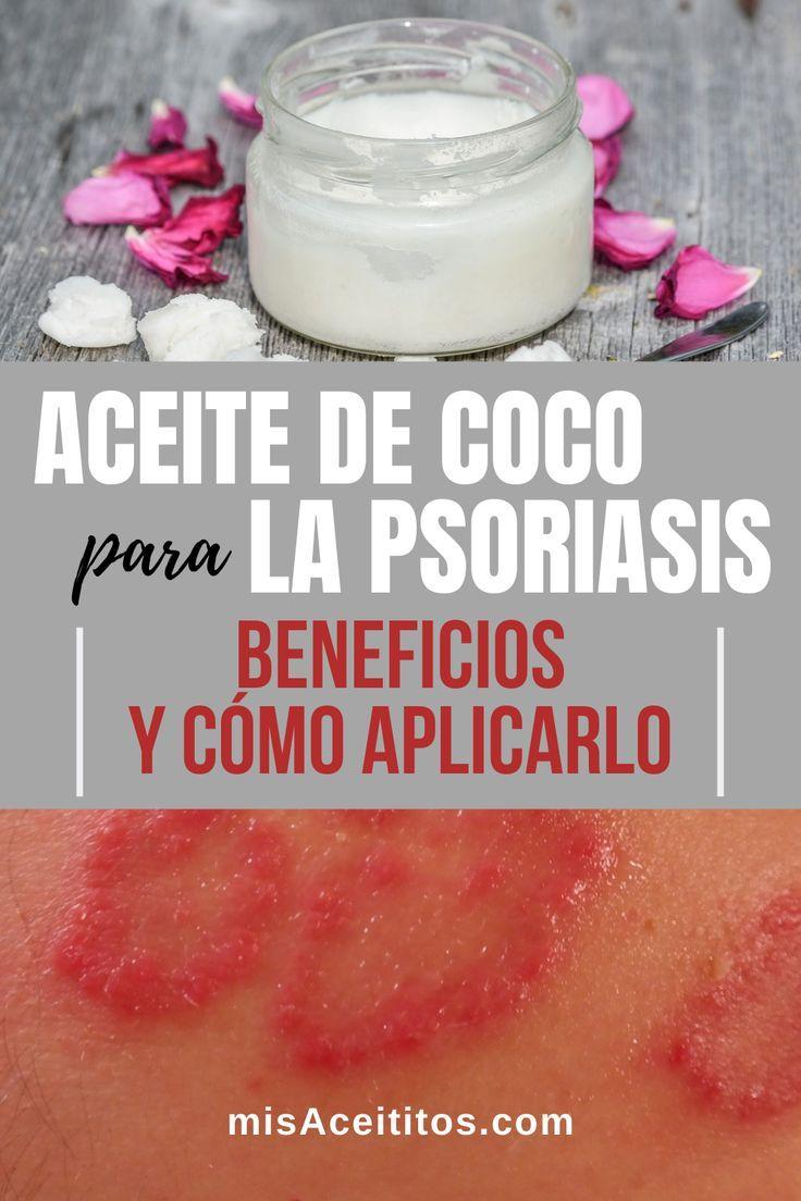 ⭐ Aceite de Coco para la Psoriasis [BENEFICIOS y USOS