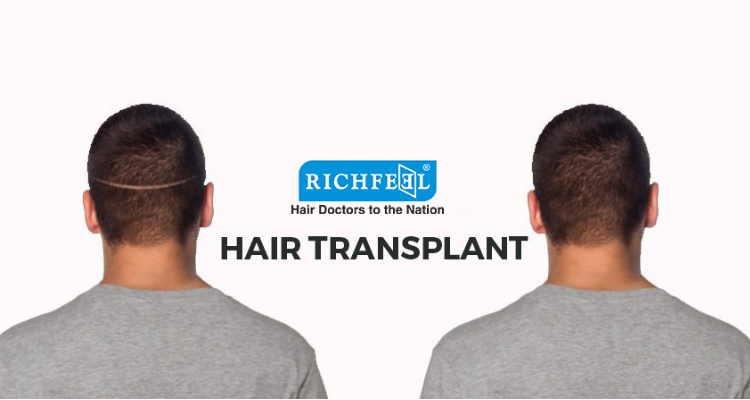 Why choose RichFeel AHI for your Hair Transplant Gallery