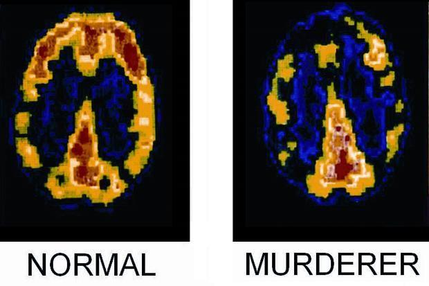 Normalvs Psychopath Brain Neuroscience Pinterest Brain