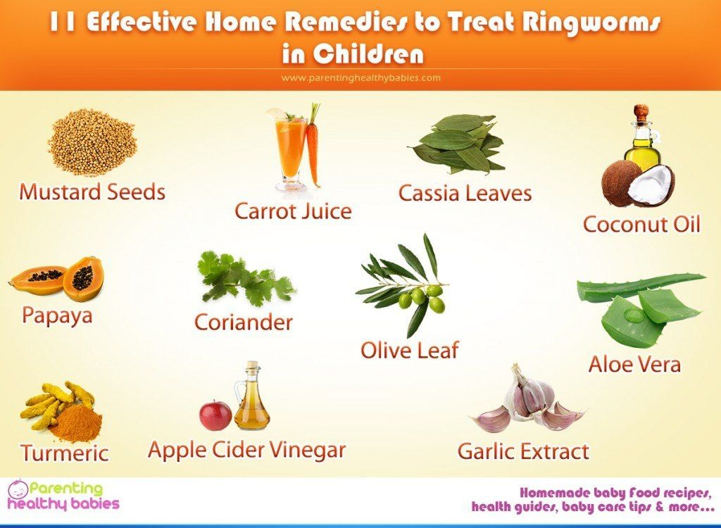 Ringworm In Kids Symptoms Causes Home Remedies Ultimate Guide