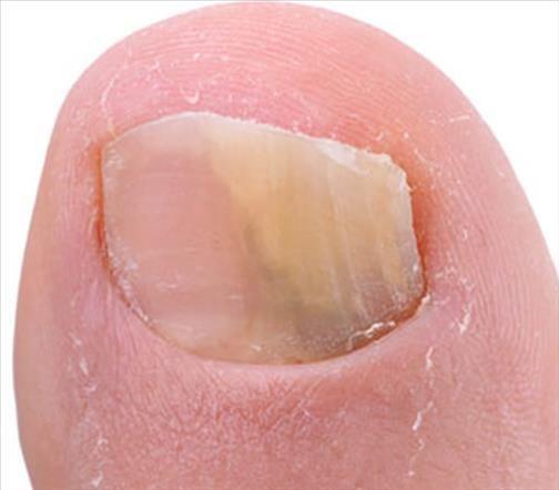 Favori Mycoses des ongles traitement naturel | Mycose des ongles  VB96