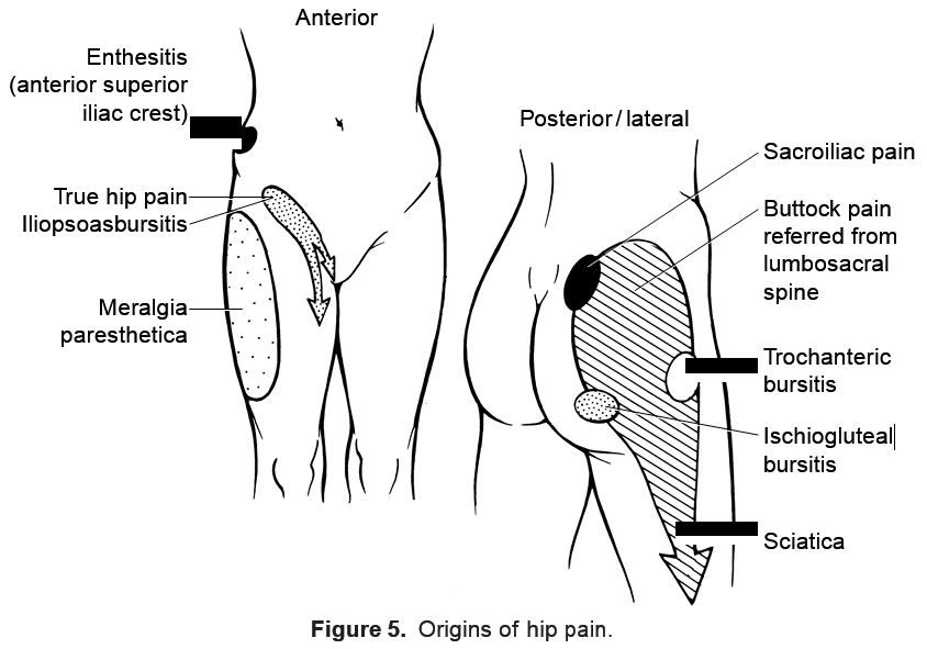 pain description for trochanteric bursitis