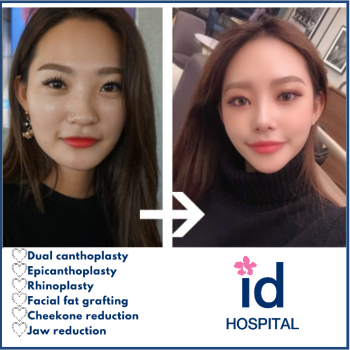 Before And After Photos Plastic Surgery Review Id Hospital Plastic Surgery Rhinoplasty Surgery
