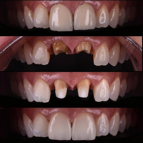 Replacement Of Misfit Metal Ceramic Crowns With Ips E Max Crowns Fiber Posts Were Placed After Removal Of The Metal Dental Crowns Dental Dental Implants Cost