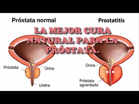 próstata agrandada 55 años