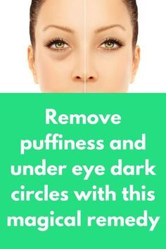 Remove puffiness and under eye dark circles with this magical remedy #darkcircle