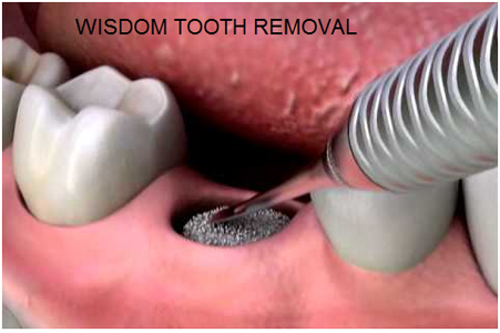 Understanding The Need For Wisdom Teeth Removal Wisdom Tooth Extraction Wisdom Teeth Wisdom Teeth Removal