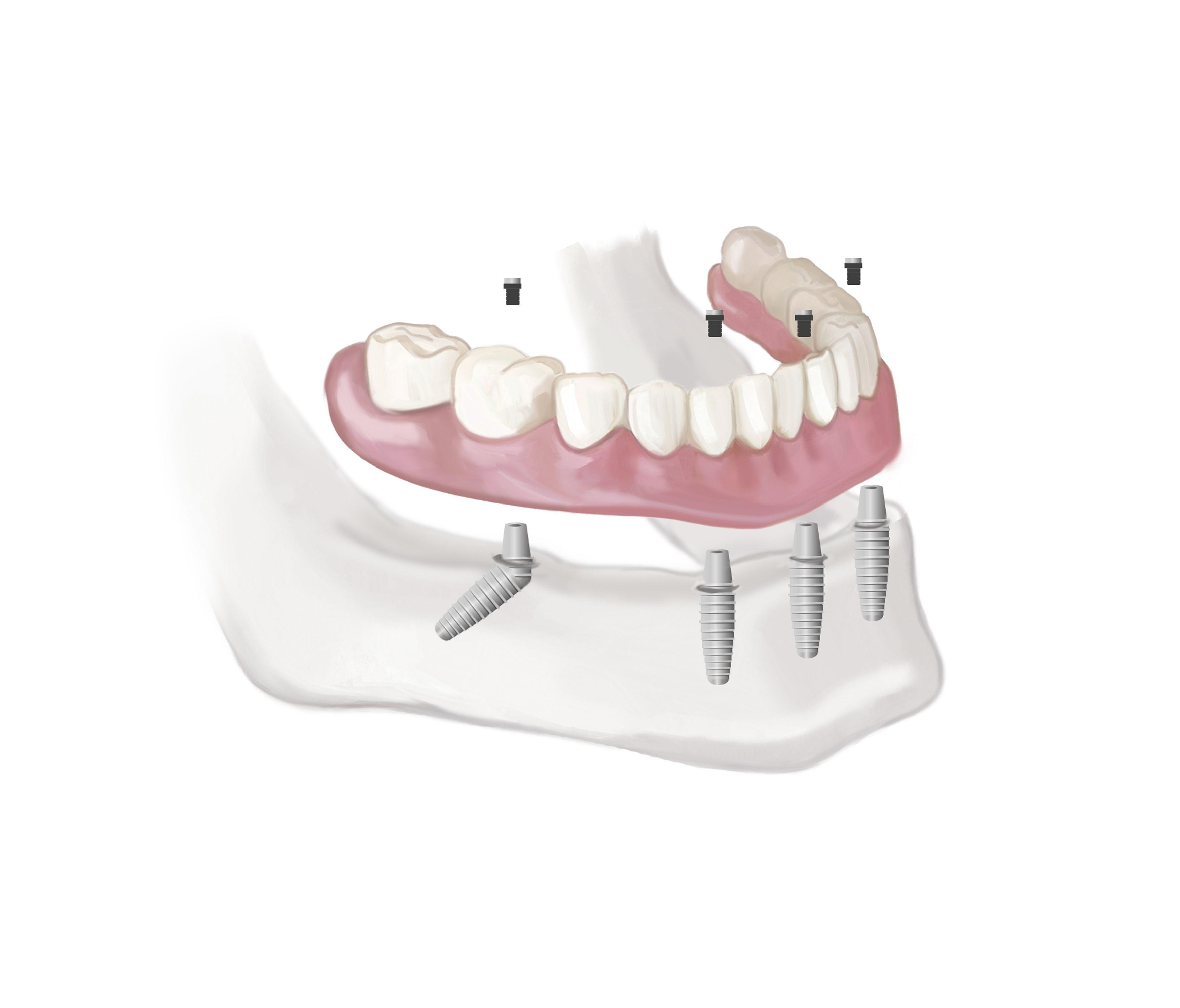 Dental implants edmonton httpwwwshoredentureclinic