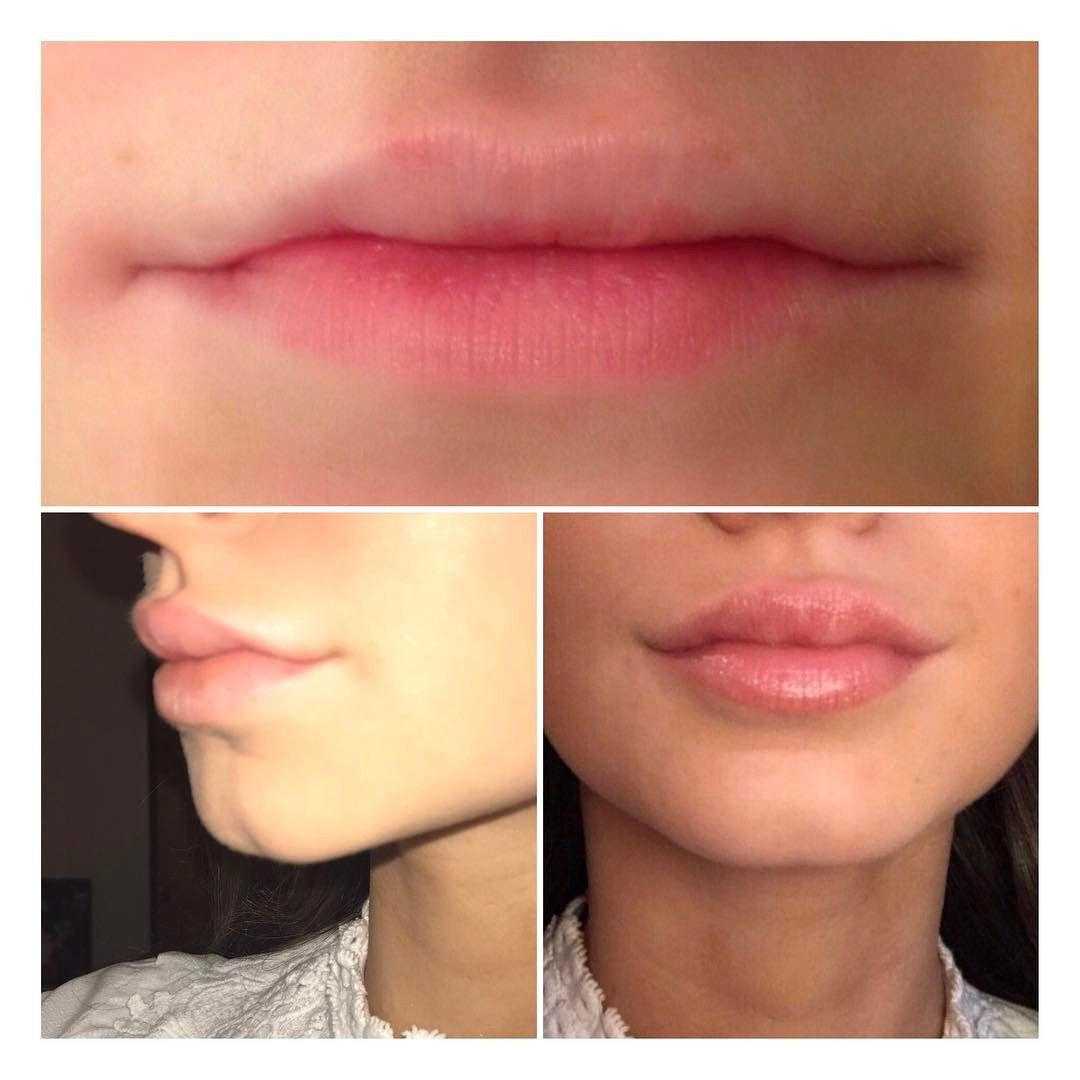 ✨Before and after client lip augmentation ✨ Bottom photo taken 9