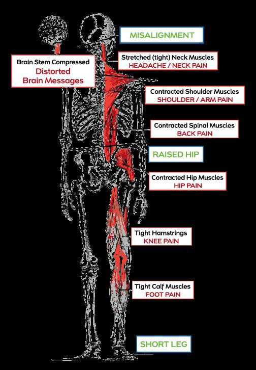 Upper Cervical Chiropractic Chiropractic Wellness Center Chiropractic Chiropractic Wellness